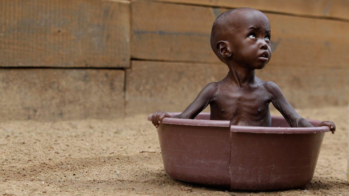 Malnutrition infantile en Afrique situation actuelle et vraies photos